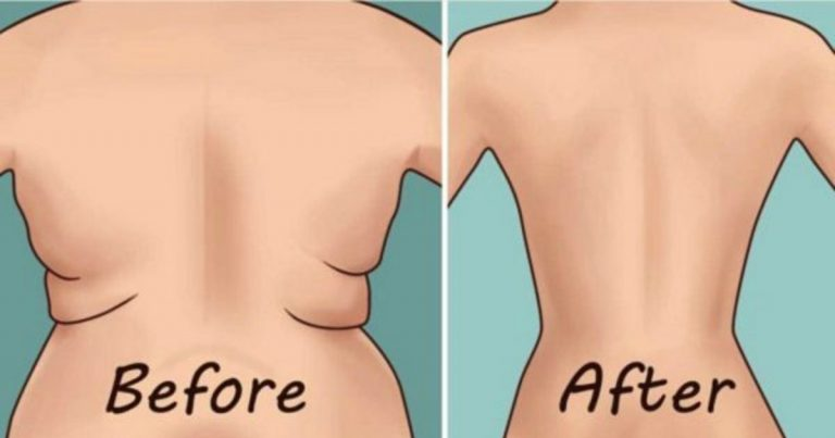 7 Easy Workouts to Get Rid of Wrinkles on Your Back and Sides