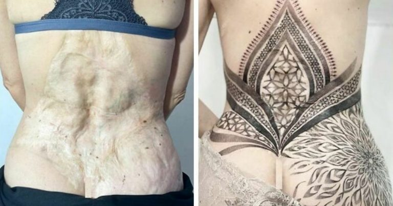 16 Incredible Scar And Birthmark Cover Ups Done By Tattoo Artists